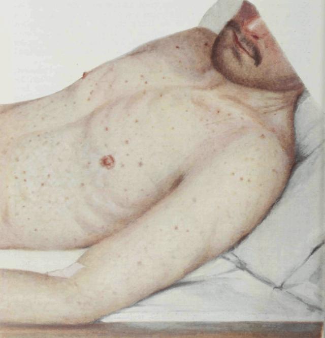 टाइफस Typhus